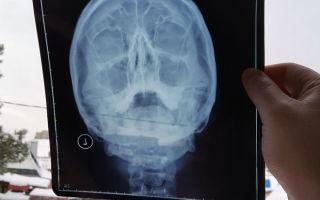 Что показывает рентген носовых пазух и как часто его можно делать