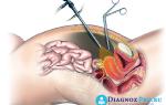 Применение лапароскопии в гинекологии