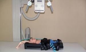 Особенности проведения рентгена грудной клетки для ребенка с учетом допустимой дозы облучения