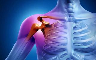 Суть и методика артроскопии плечевого сустава: ход операции, анестезия и реабилитация