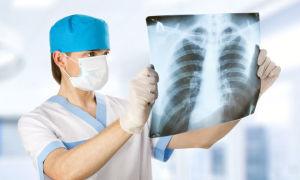 Что такое рентген и разновидности рентгенологических методов исследования