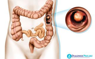 Колоноскопия кишечника с удалением полипов и диета после ее проведения