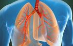 Что показывает рентгенография органов грудной клетки на цифровых и классических аппаратах
