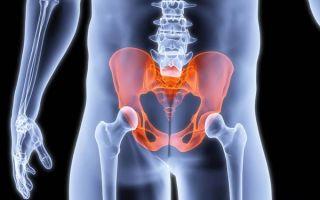 КТ органов малого таза – ведущий метод диагностики