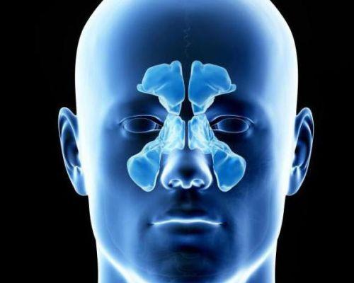 Обследование пазух носа с помощью КТ — особенности диагностики, подготовка и результат