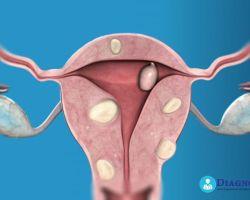 Лапароскопия при миоме матки — ход операции, восстановление и возможные осложнения