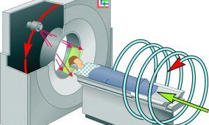 Особенности проведения мультиспиральной компьютерной томографии