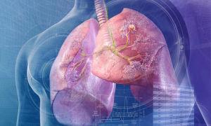 Показывает ли рентген новообразования на начальных стадиях и как выглядит рак легких с метастазами