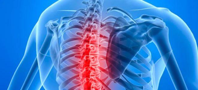 МРТ для грудного отдела позвоночника – гарантия точного диагноза