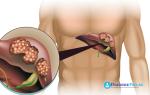 Особенности диеты после удаления желчного пузыря лапароскопическим методом