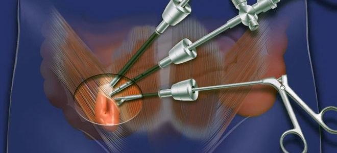 Особенности лапароскопической герниопластики — сфера применения, методика проведения и реабилитация