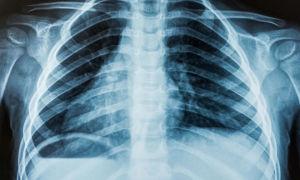 Все о вреде проведения рентгена и сколько раз его можно делать в год