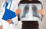 Чем рентген отличается от флюорографии и какой вид обследования лучше