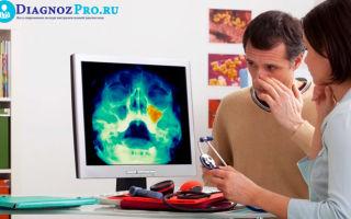 Суть и методика эндоскопической гайморотомии