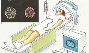 Что такое ПЭТ КТ: особенности диагностики, показания и результат