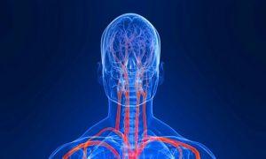 МРТ головного мозга с ангиографией сосудов – оптимальная диагностика болезней головы