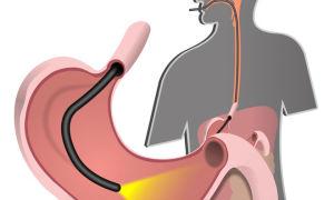 Эзофагогастродуоденоскопия (ЭГДС) — что это такое и как проходит обследование