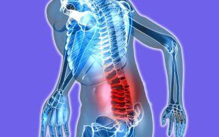 Обследование пояснично-крестцового отдела позвоночника на МРТ: зачем делают и что можно диагностировать