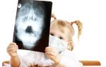 Можно ли делать рентген ребенку и насколько это опасно