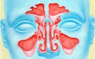 Метод МРТ в диагностике пазух носа