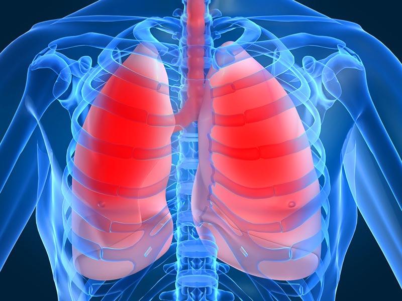 Что такое компьютерная томография легких