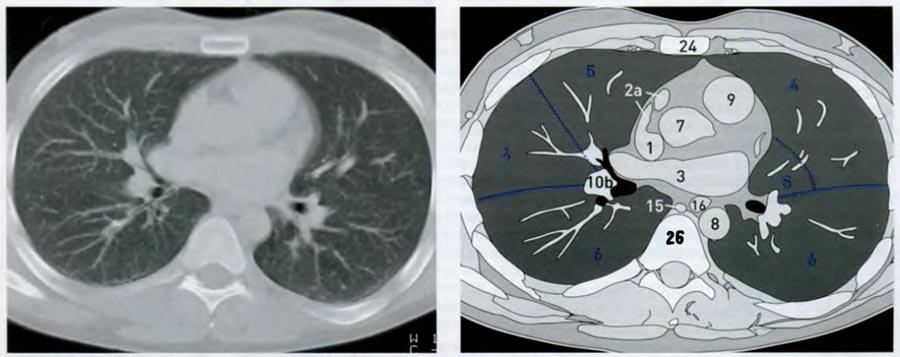 снимок кт грудной клетки