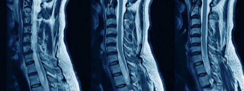 Снимок позвоночника на МРТ