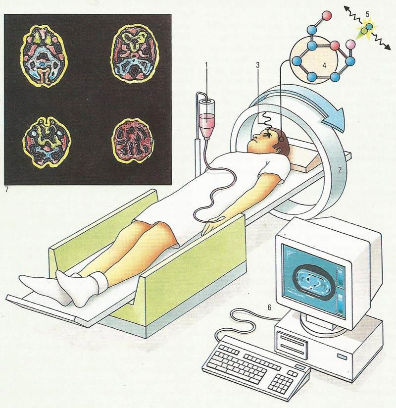 Позитронно эмиссионная томография (ПЭТ) что это?