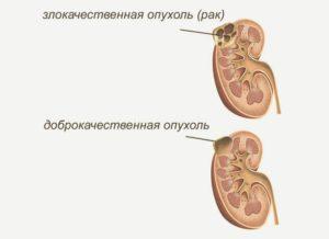 Злокачественная и доброкачественная опухоли