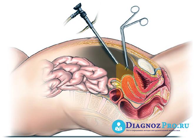 Лапароскопия в гинекологии - показания к операции или диагностики, противопоказания и осложнения