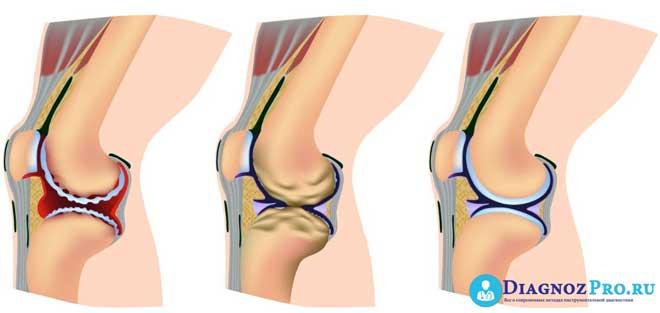 Изображение - Лапароскопия коленного сустава a13598f7f329f6afec5db7f7ba8b6b82