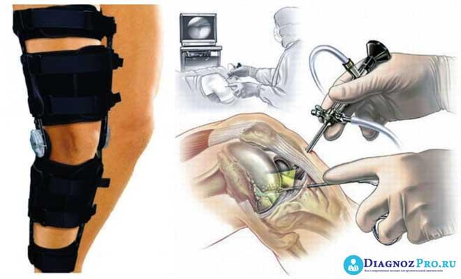 Изображение - Лапароскопия коленного сустава fullsize