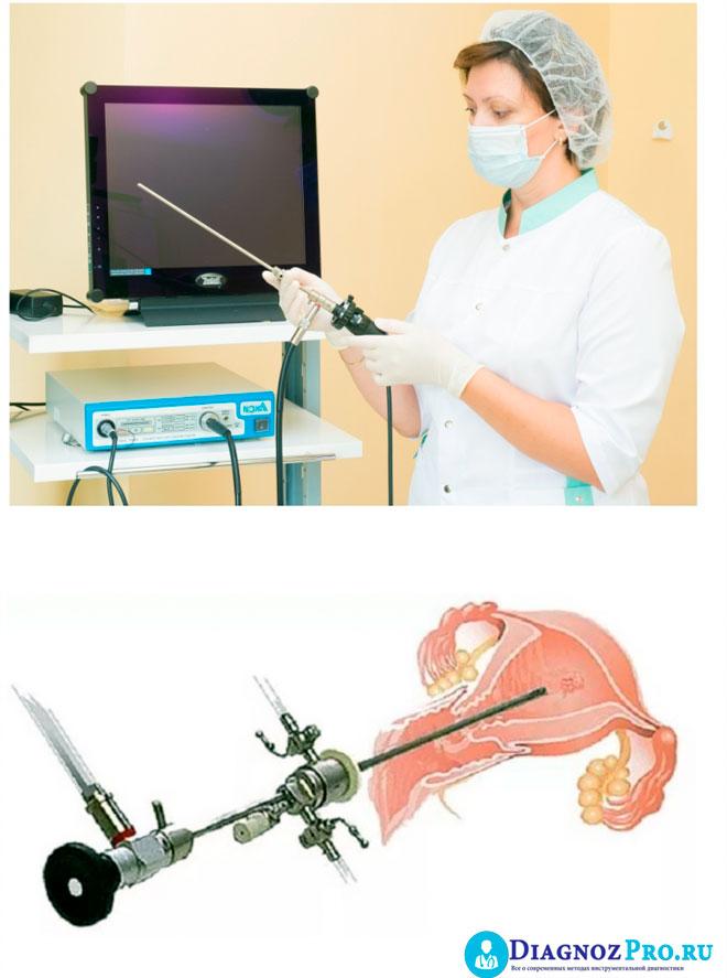 процедура