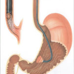 Трубка в желудке