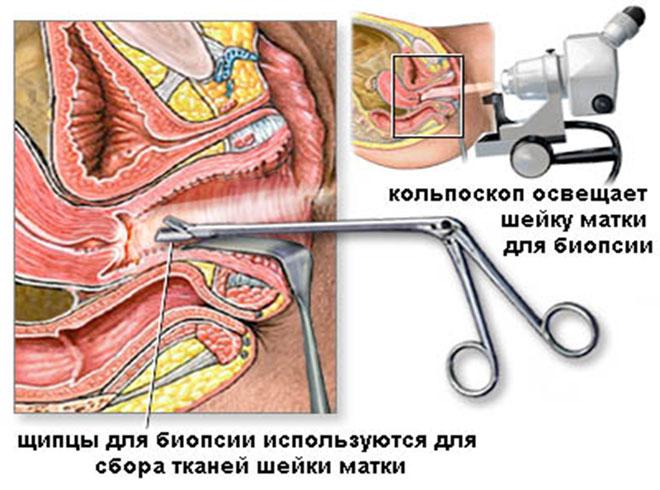 Процедура с биопсией