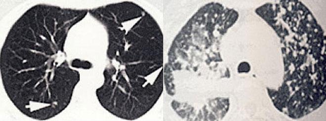 Бронхоальвеолярная форма